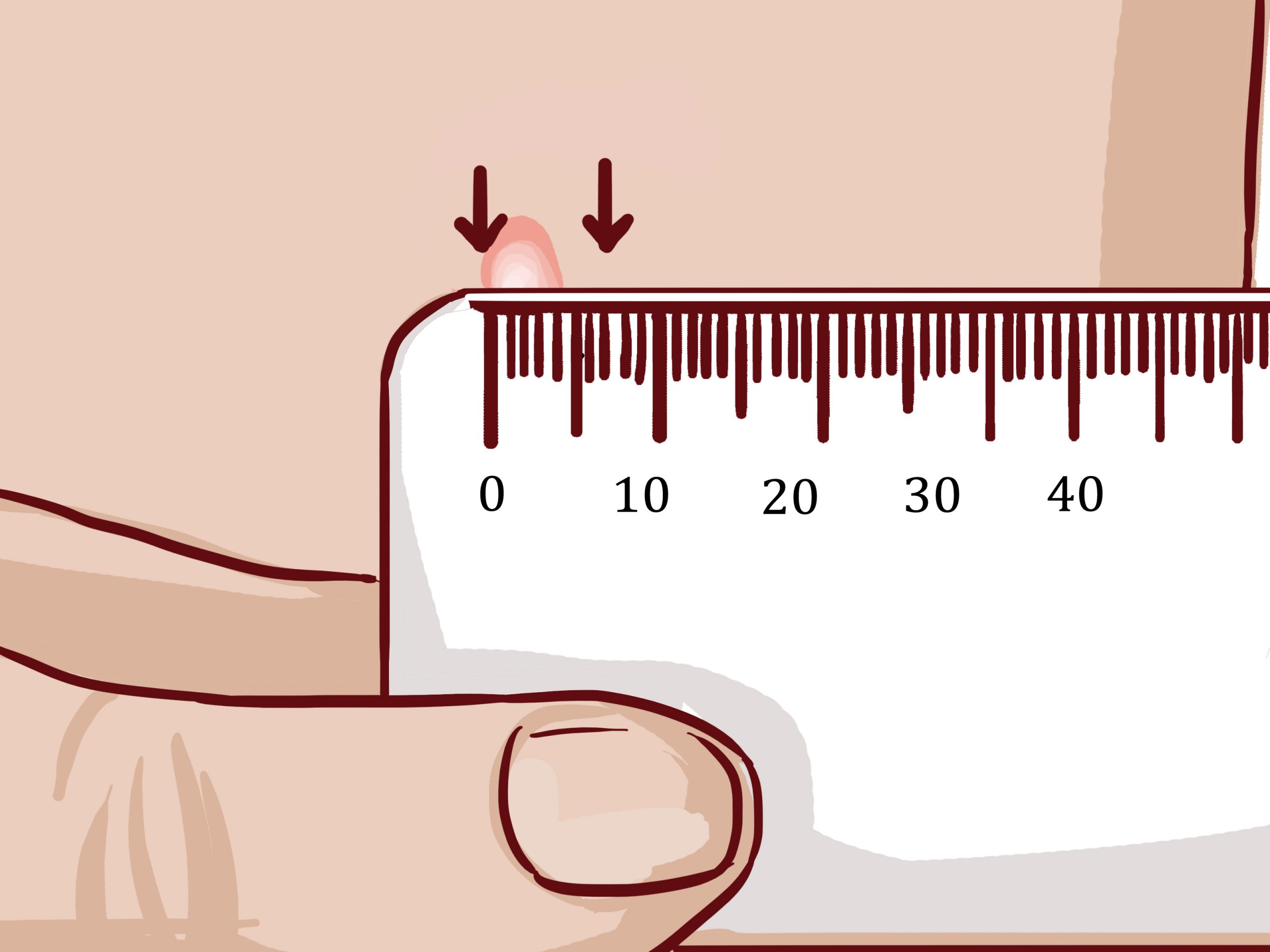 How To Read A Tuberculosis Skin Test: 9 Steps (With Pictures)